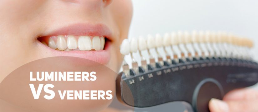 lumineers vs veneers