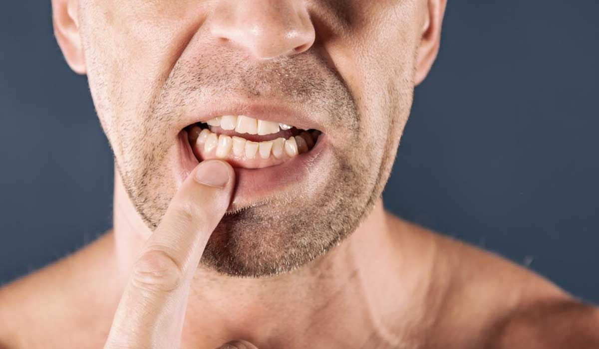 علاج خراج اللثة بالطرق المختلفة واحذر هذه المضاعفات Bbeiroot